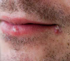 cold sore treatment during pregnancy week 14